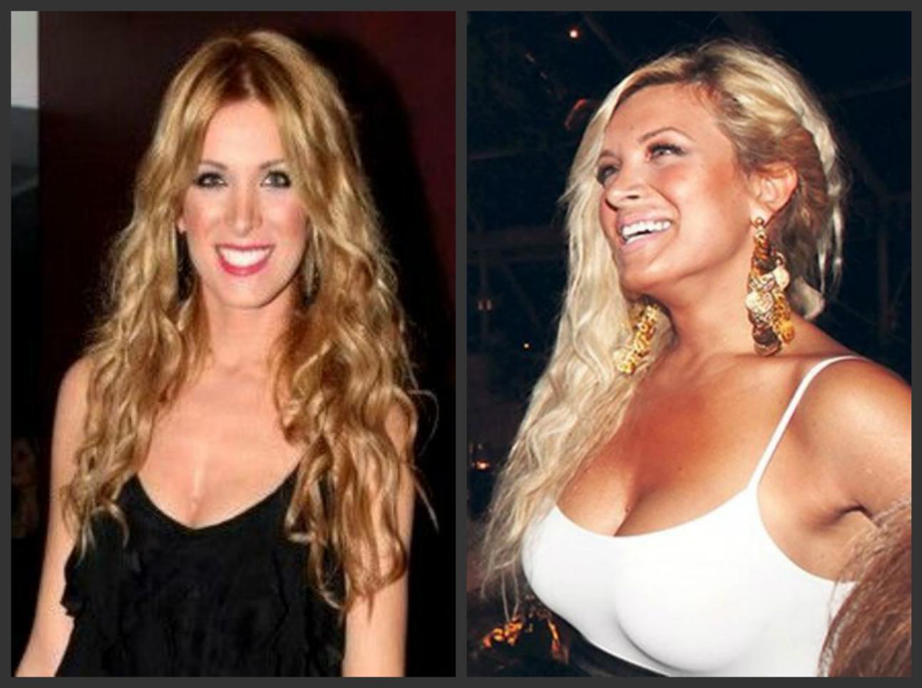 10 εντυπωσιακές Ελληνίδες πριν και μετά την πλαστική στήθους (Pics)