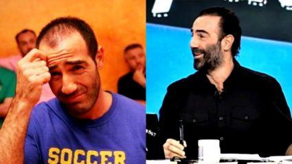 Πριν και μετά! 5 διάσημοι Έλληνες που μέσα σε μια νύχτα… έβγαλαν μαλλιά (Pics)