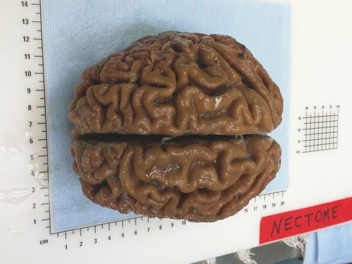 «Αναγέννηση» μέσω θανάτου: Το αδιανόητο project ταρίχευσης και ανάκλησης του ανθρώπινου εγκεφάλου είναι ήδη περιζήτητο