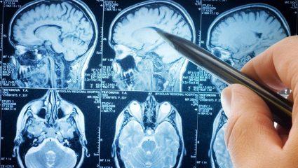 Υπερθυμησία: Η γυναίκα με την τερατώδη εγκεφαλική «RAM»